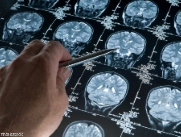 Antidepressant 'can affect brain within hours'