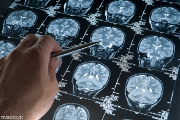 Breakthrough in Alzheimer's plaque treatment