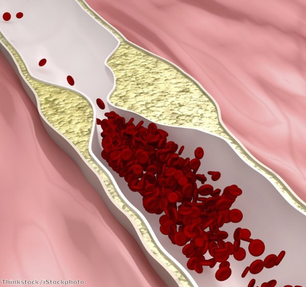 Can 'good cholesterol' be made in laboratories?